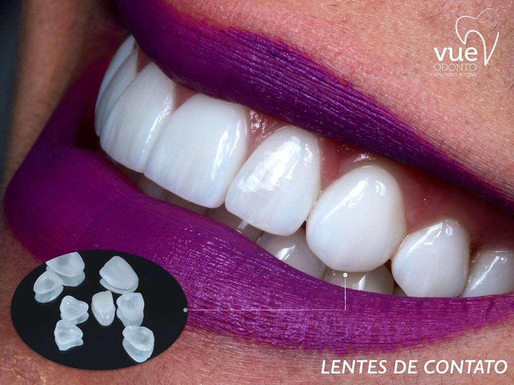 Estetica Dental