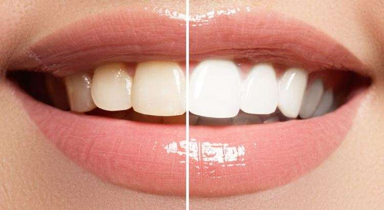 clareamento interno dental